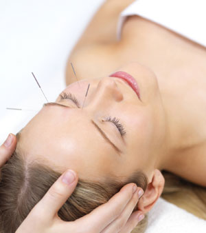 acupuncture london
